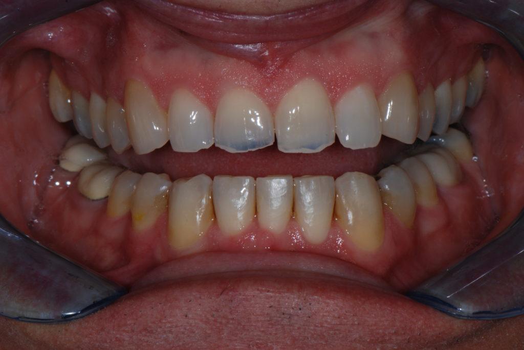 DSC 0150 1024x685 1 Rockford Dentist
