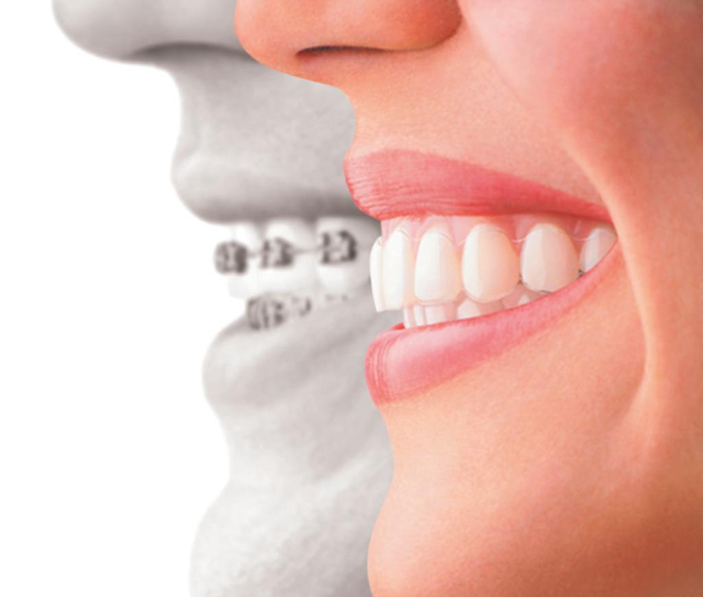 invisalign pic Rockford Dentist